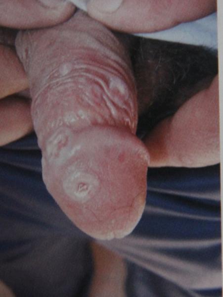 Вторичный период сифилиса. .  Эрозивные папулы полового члена.